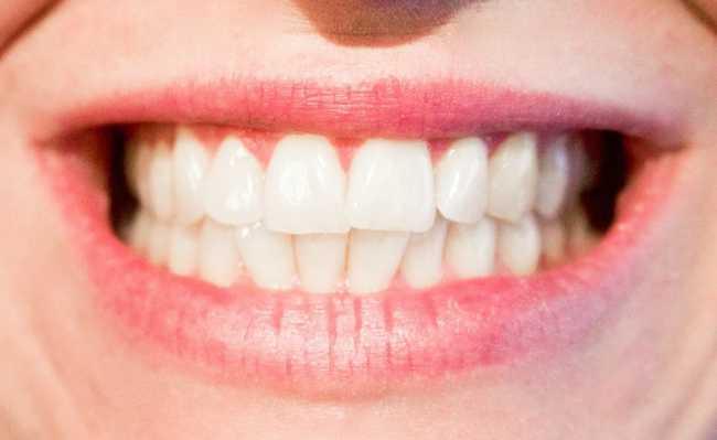 Metodos Caseiros Para Clarear Os Dentes