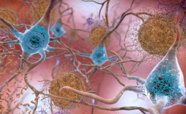 Neurônio alzheimer
