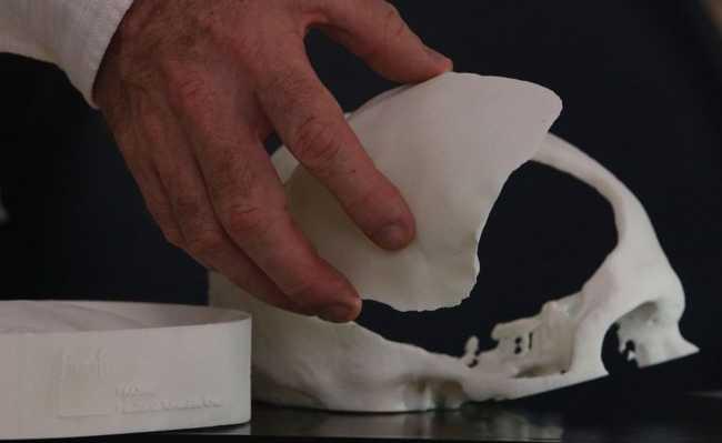 Reconstrução craniana