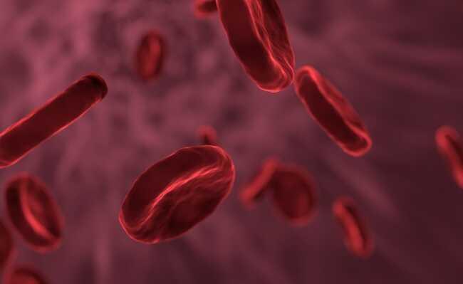 anemia sideroblástica