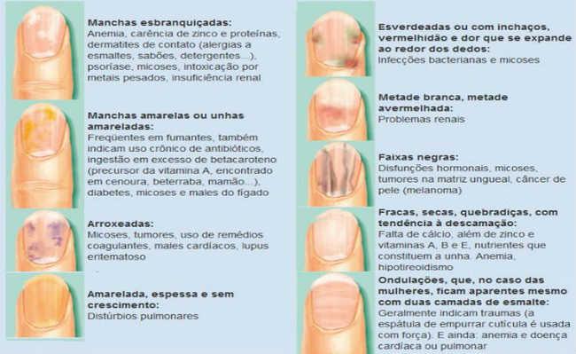 onfira um quadro-resumo mostrando as condições das unhas e o que elas podem significar: