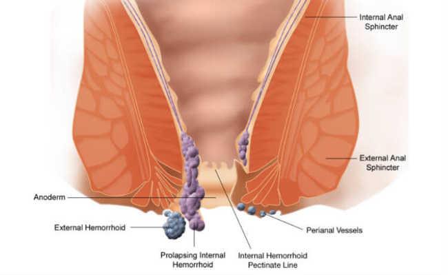 Diagrama com hemorroidas internas e externas
