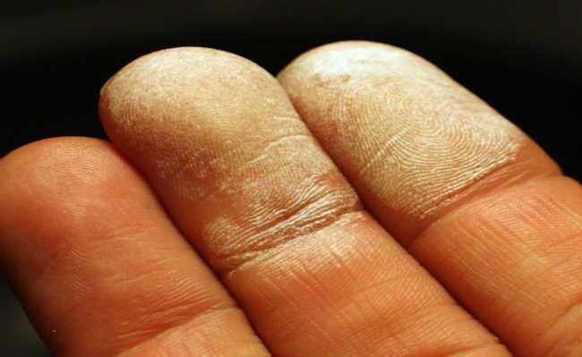 pele água oxigenada