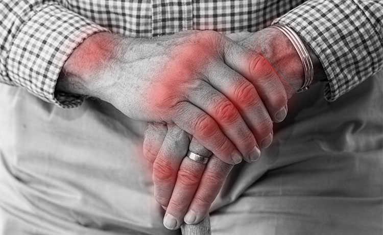 Resultado de imagem para foto de artrite reumatoide