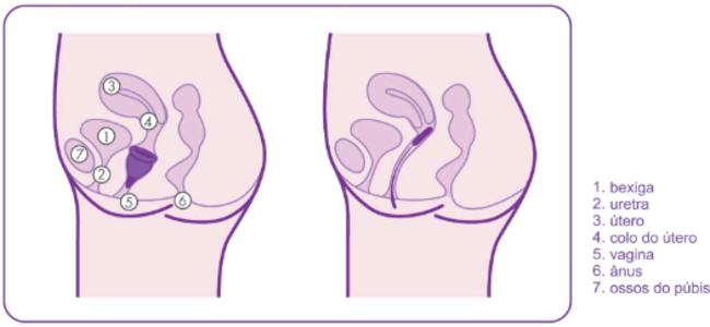 Infográfico sobre a anatomia do coletor em relação a sua altura no colo do útero